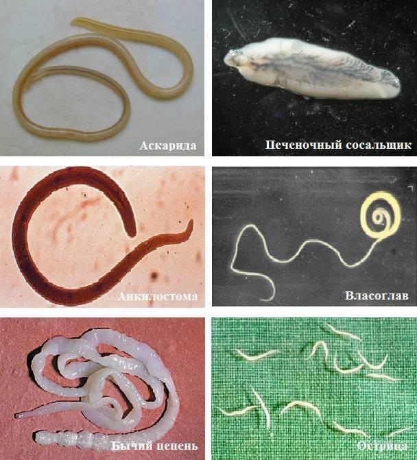 Паразиты в печени человека – симптомы и лечение всех видов глистов