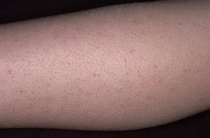 Фолликулярный гиперкератоз: лечение, причины гусиной кожи, как избавиться от гусиной кожи