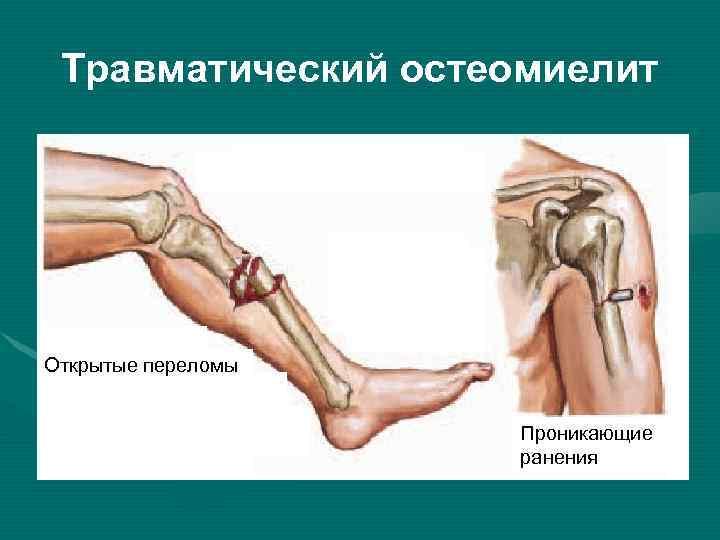 Лечение остеомиелита: что ждет пациента