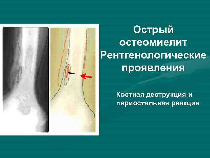 Острый остеомиелит