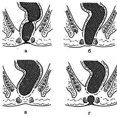 Опущение кишечника: симптомы и лечение