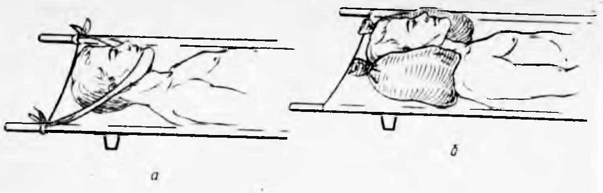 Способ фиксации электродов к костям черепа животных — su 1368909
