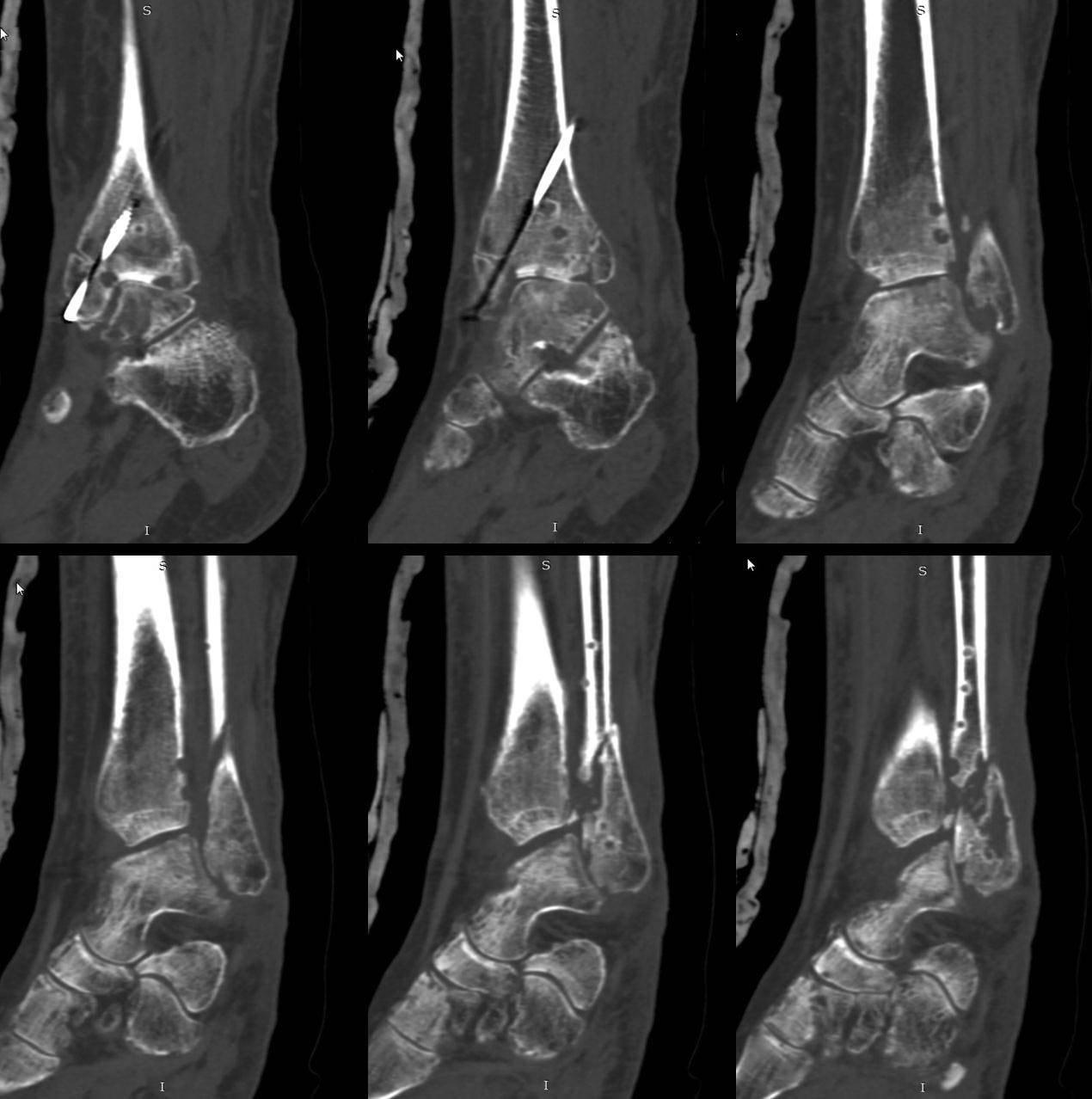 Чем опасен остеомиелит костей?
