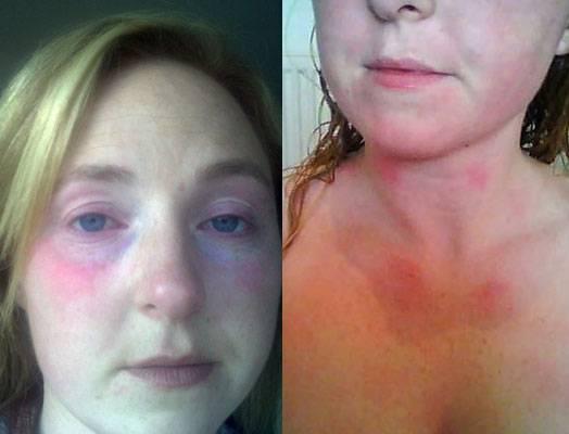 Возможна ли аллергия на черепах