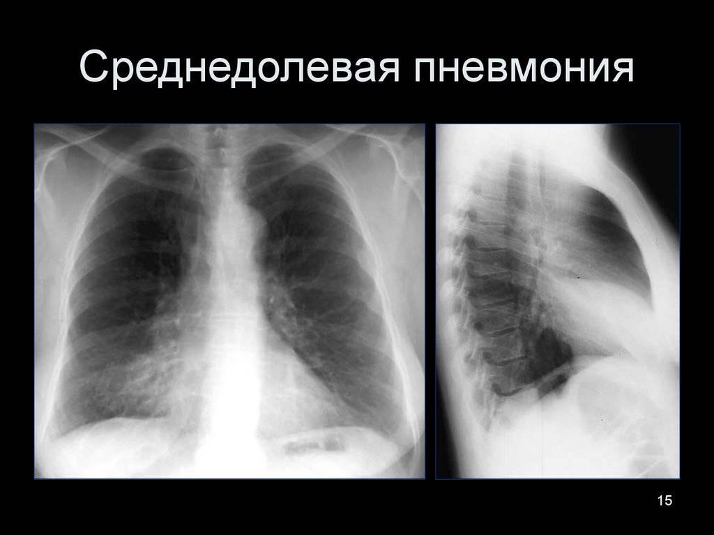 Симптомы и лечение пневмонии у взрослого