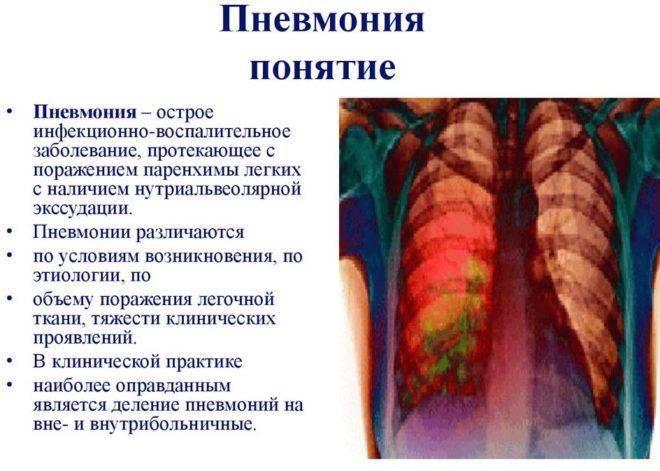 Что будет если не лечить пневмонию? опасности перенесенного на ногах воспаления легких