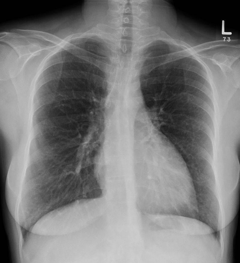 Пневмония | симптомы | диагностика | лечение - docdoc.ru