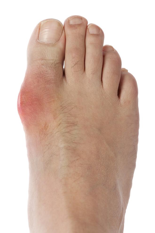 Лечение подагрического артрита суставов