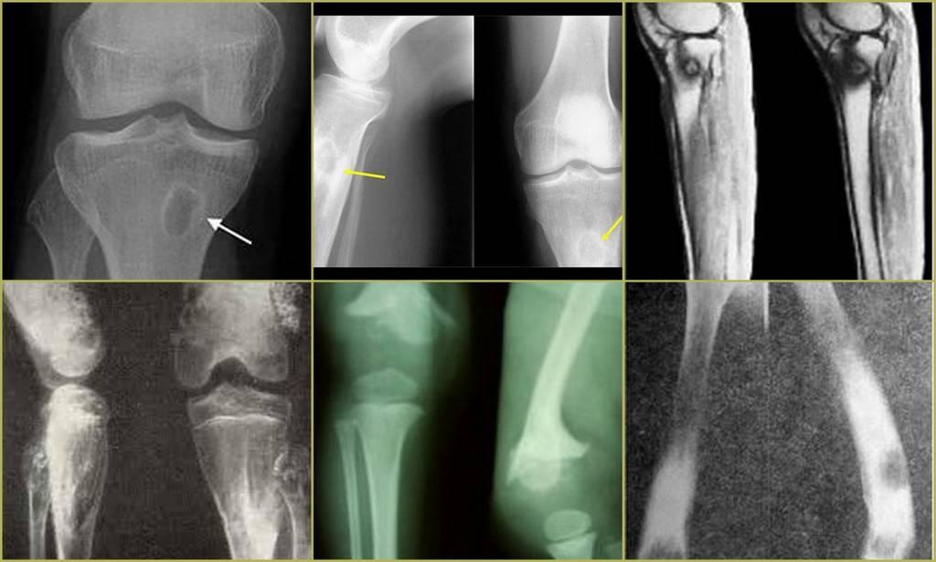 Причины и симптомы острого и хронического остеомиелита