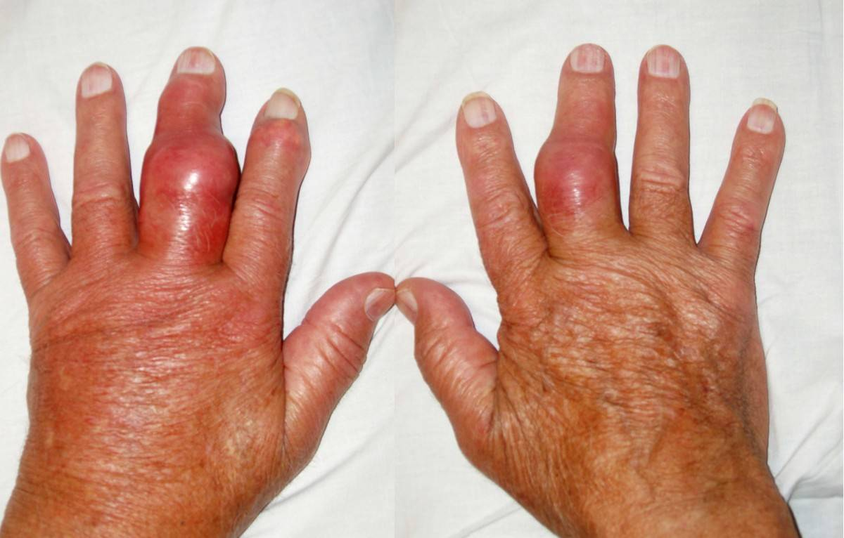 Подагрический артроз стопы лечение