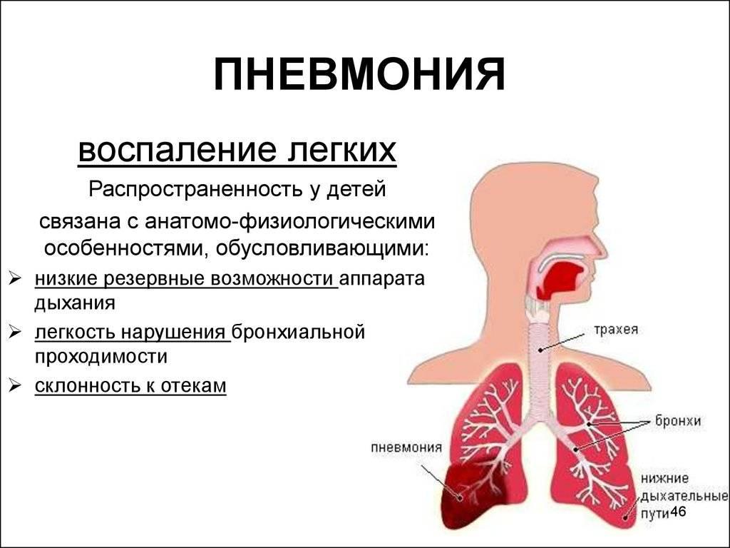 Пневмония – симптомы и признаки у взрослых и детей