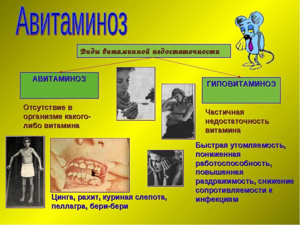 Гиповитаминоз и гипервитаминоз витамина а