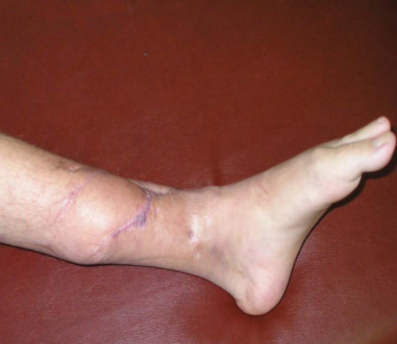 Остеомиелит. причины, симптомы, признаки, диагностика и лечение :: polismed.com
