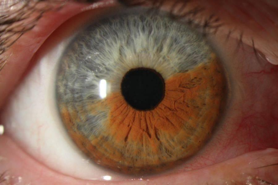 Увеит глаза: симптомы заболевания, лечение, причины возникновения. как лечить увеит глаза