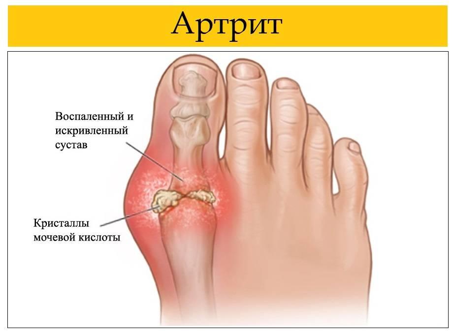 Подагра – это артрит или артроз: различия и сходства
