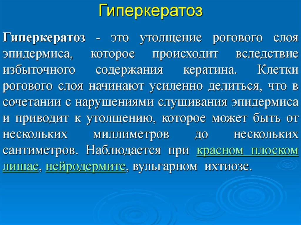 Гиперкератоз. что это такое, причины, симптомы и лечение. виды, стадии, фото