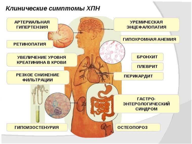 Симптомы и лечение почечной недостаточности у женщин