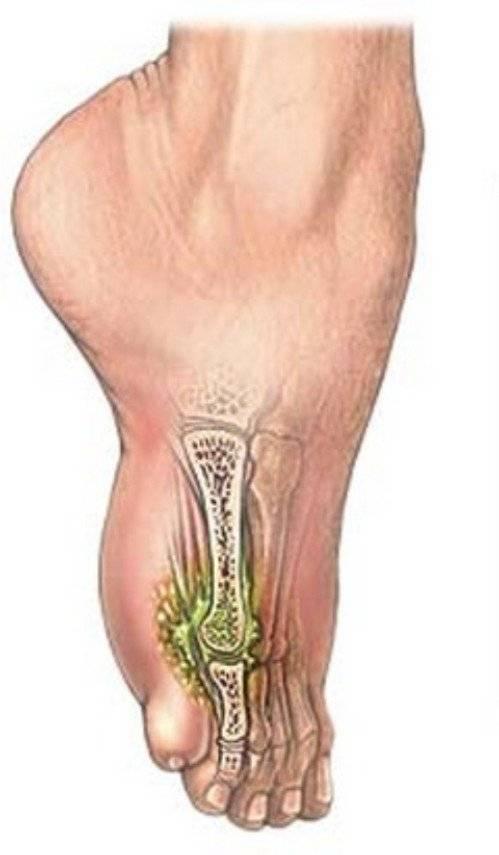 Остеомиелит: что это такое, причины, симптомы и лечение заболевания костей