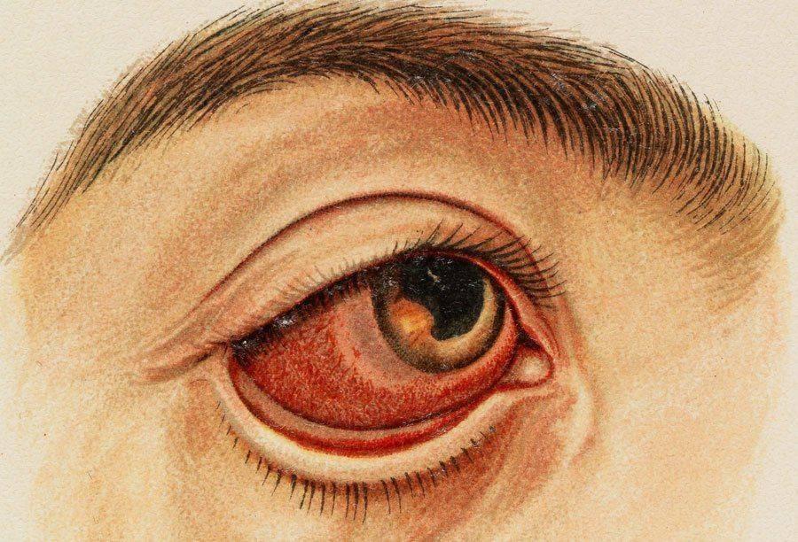 Увеит (воспаление сосудистой сетки глаза): фото, симптомы и лечение