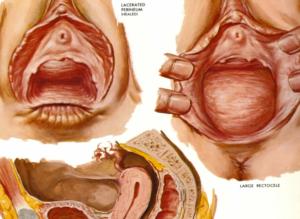 Почему происходит выпадение яйцевода у кур и как осуществляется лечение?