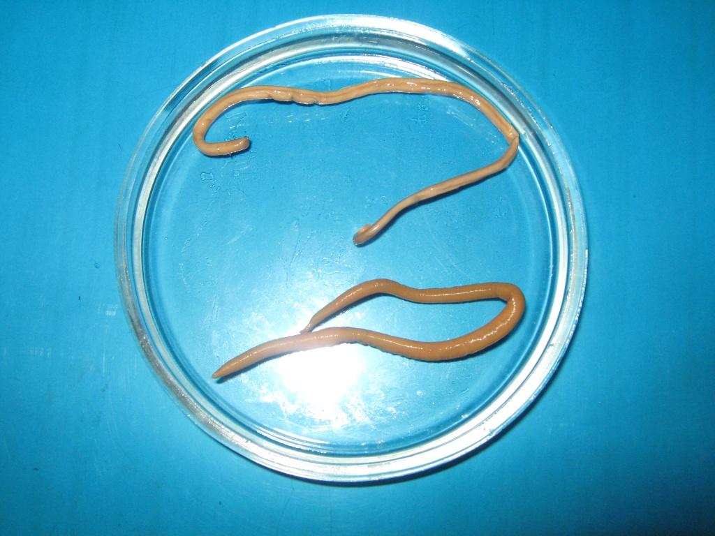 Гельминтоз и аскаридоз