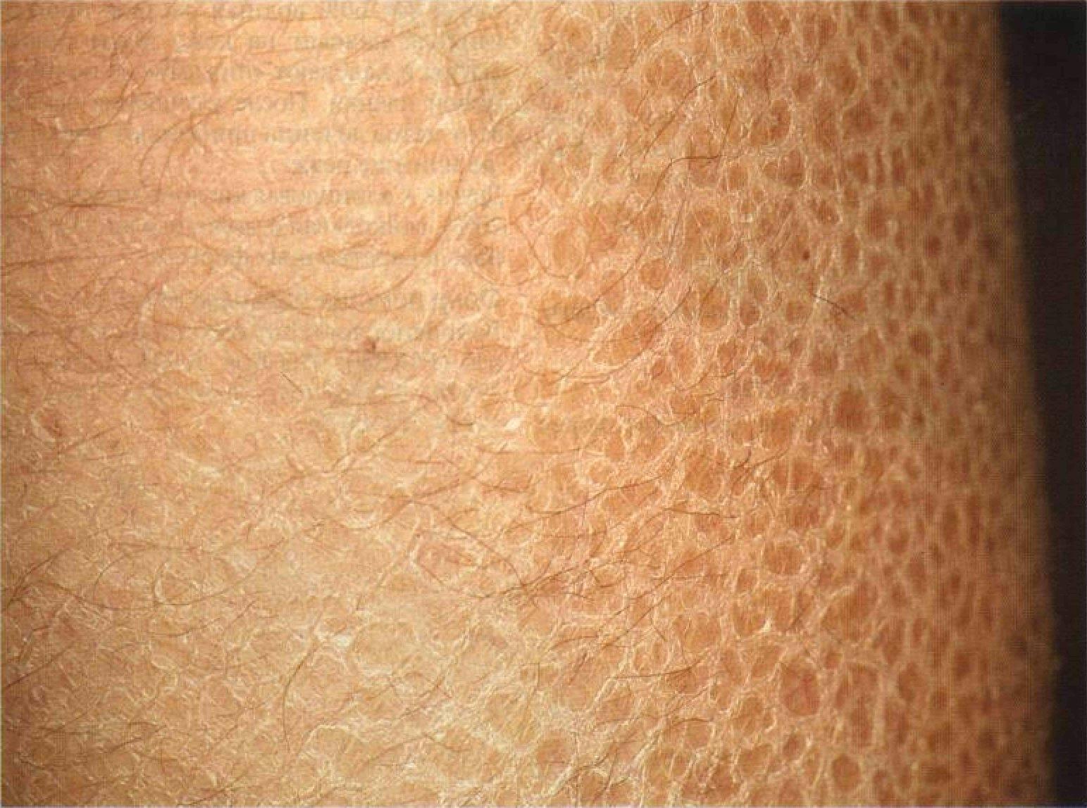 Гиперкератоз шейки матки: причины возникновения и методы лечения