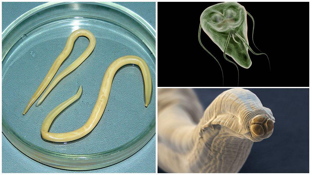 """Нежданные """"гости"""" – глисты - глисты, гельминты, гельминтозы, острицы, аскариды, власоглавы, клинические проявления, опасность, ле"""
