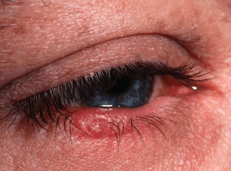 Конъюнктивит. симптомы, причины и лечение конъюнктивита