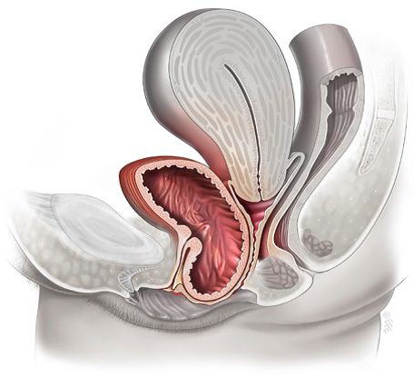 Статья про атрезию ануса и прямой кишки (из интернета)