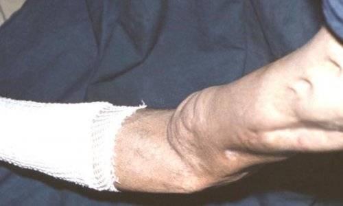 Профилактика, диагностика и лечение остеомиелита