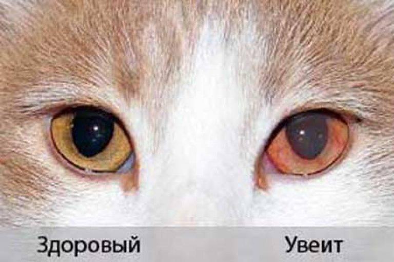 Заболевание глаз увеит: причины, симптомы и лечение