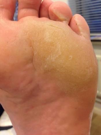 Причины и лечение фолликулярного гиперкератоза кожи кремами и мазями для детей и взрослых