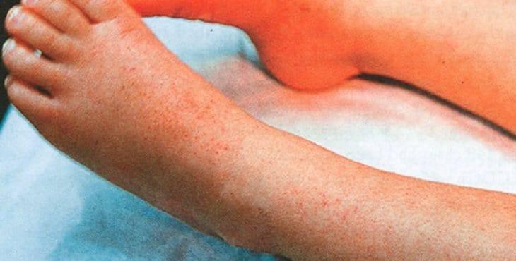 Сепсис. причины, симптомы, признаки, диагностика и лечение патологии :: polismed.com