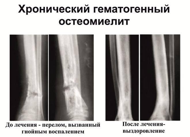 Подострый остеомиелит