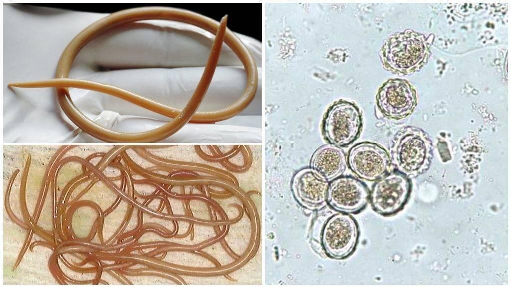 Аскариды - человеческие паразиты (гельминты, глисты), заболевание аскаридоз у взрослого человека