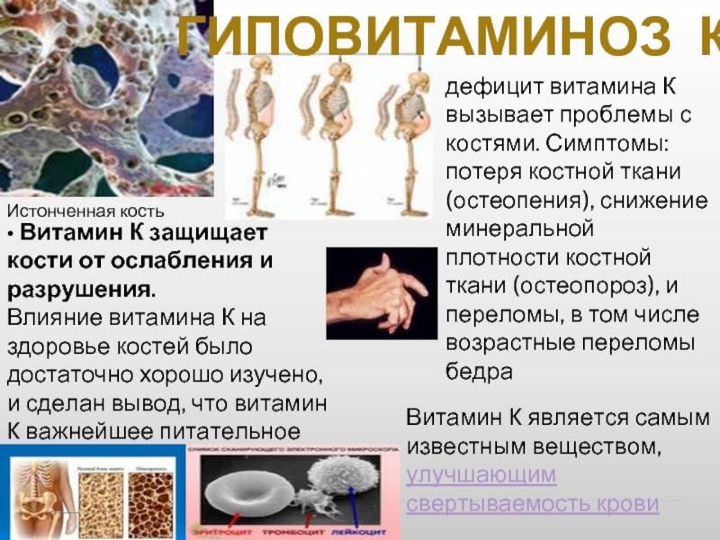 Авитаминоз, гиповитаминоз, гипервитаминоз | физразвитие