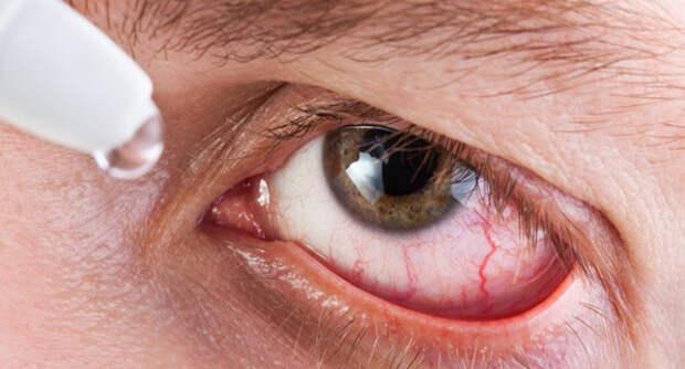Увеит глаза: что это такое, симптомы и причины, лечение дома и в стационаре, прогноз и последствия